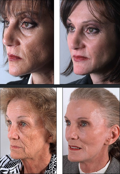 beforeafterskinpeels